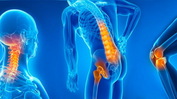 Arthrosis: Remedies against pain and inflamation